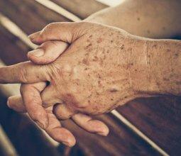 Коричневые пятна на коже рук: что это и какие причины