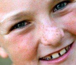 Белые пятна на коже у ребенка: что это и стоит ли беспокоиться