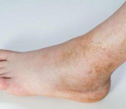 Пигментация кожи на ногах: причины и методы избавления