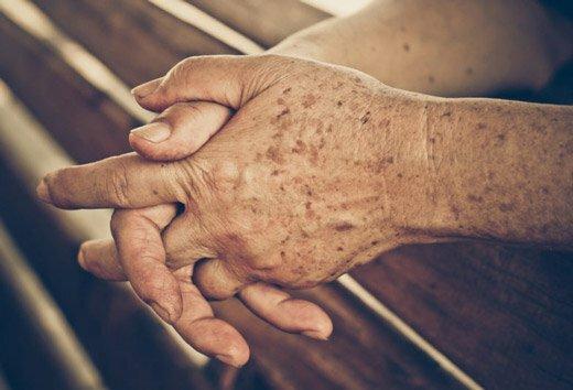 коричневые пятна на руках