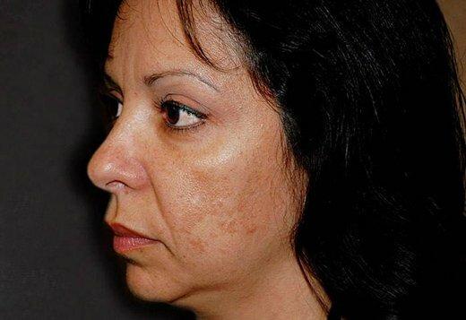 старческие пятна на лице