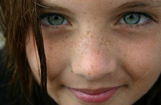 веснушки на лице у девушки