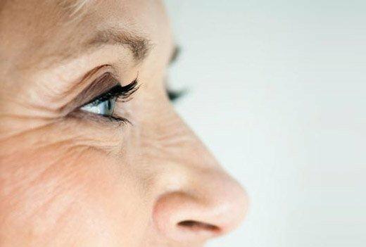 пятна на лице у женщины